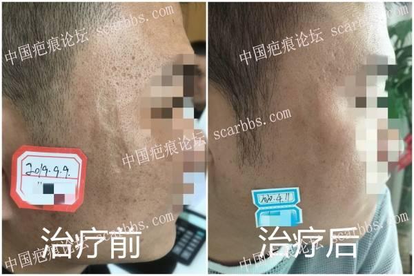 脸部凹陷疤痕光电治疗效果