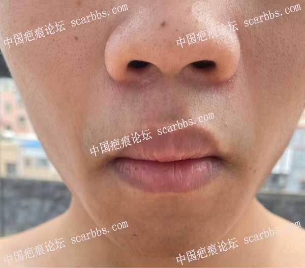 疤痕切除3个月的疤痕情况
