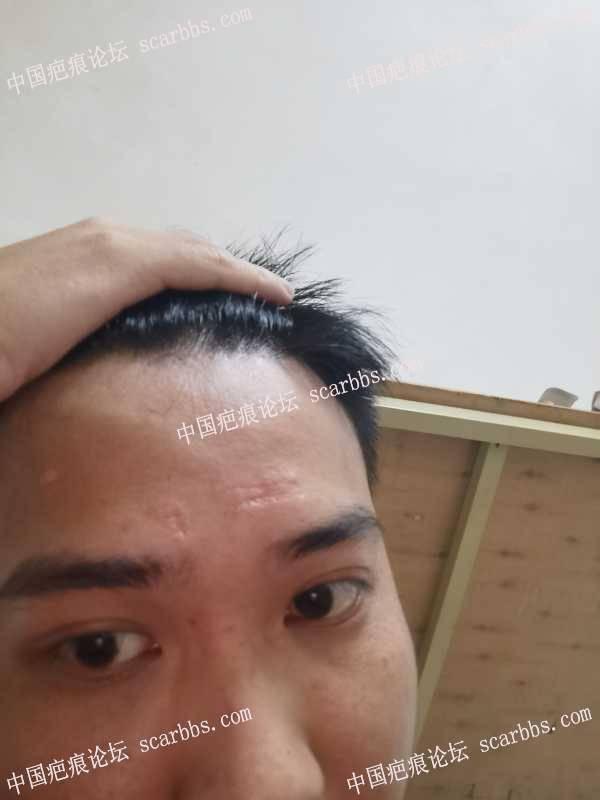 额头疤痕是不是没救了,