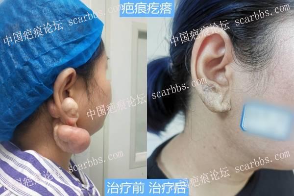 耳部疤痕疙瘩手术切除治疗效果