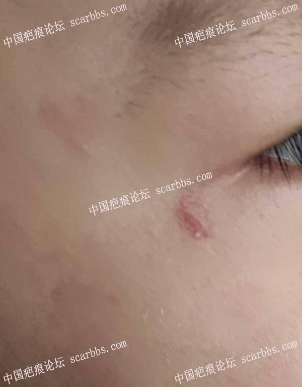 孩子疤痕增生,贴减张效果不是太好了。怎么护理呢