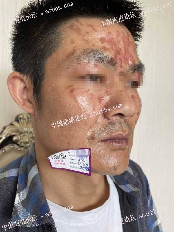 [脸部烧烫伤疤痕]简单分享下烧烫伤疤痕治疗过程