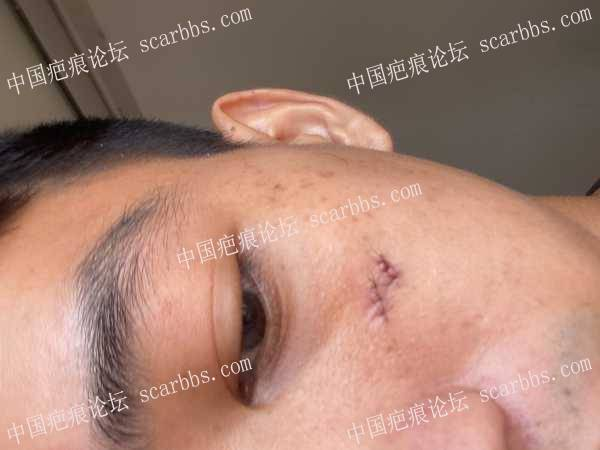 脸上的凹陷疤痕,5月24号做的缝合手术