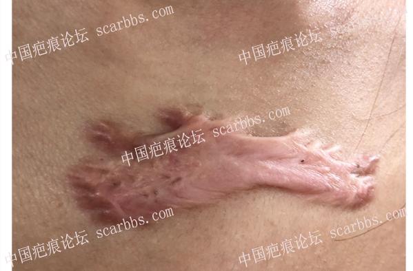 疤痕疙瘩有什么特点?怎么治?