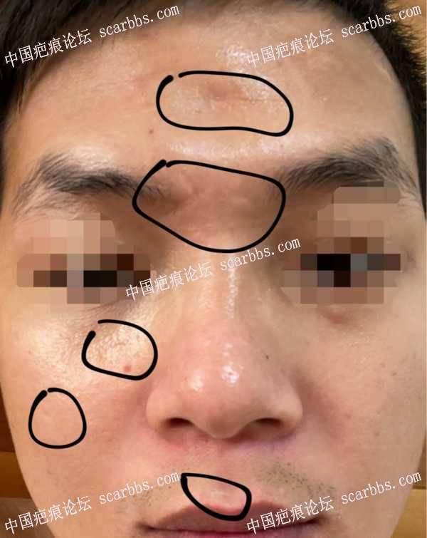 面部的多年老疤求咨询