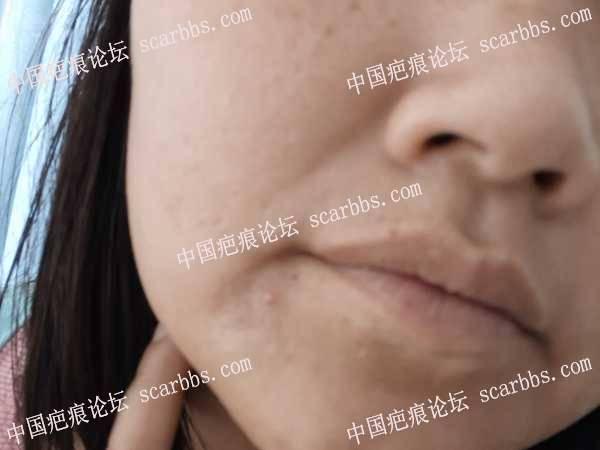 嘴角旁边感染导致的色素疤痕怎么改善?麻烦各位高人指点一下?谢谢了