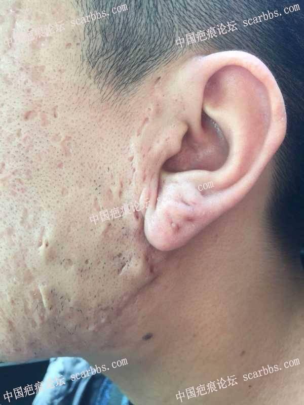 我的耳部疤痕疙瘩,如何治疗?