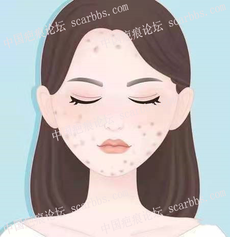 怎么去除脸上的疤痕?