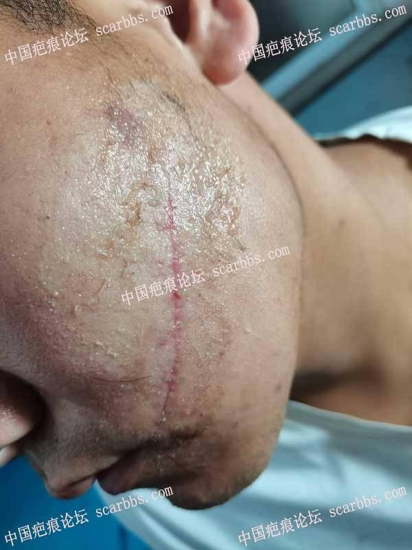 面部被刀划伤,求问,能恢复到什么程度