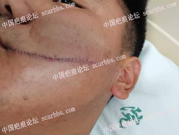 给大家看一下面部伤口缝针时的照片,我这会变成很凹的疤吗?
