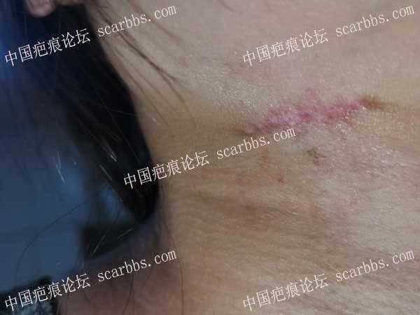 颈部伤口用了芭克好像没那么红了,这种是增生吗