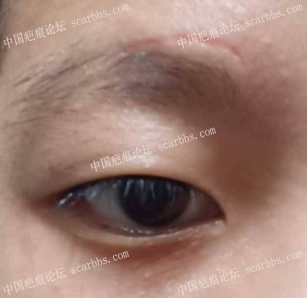 掉痂后的凹陷疤痕可以用贝复新生长因子吗
