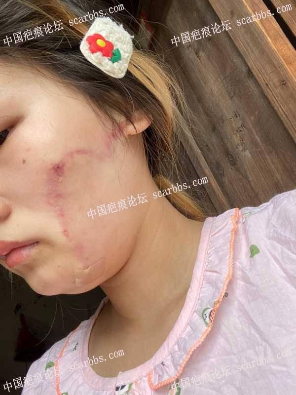 面部扩张术后皮肤有点紧,疤痕红,怎么办?