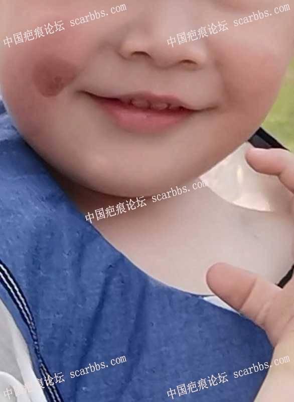 杨教授您好,请您帮忙看看孩子嘴角胎记是否能切除