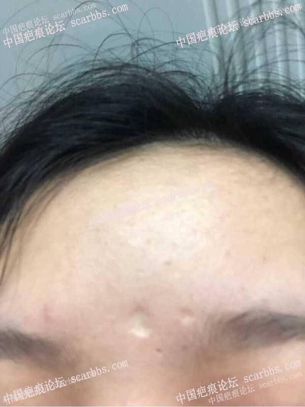 小时候点痣留下的凹陷圆疤痕,怎么治疗好?