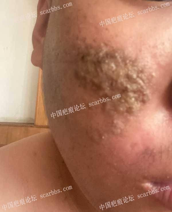 5月16摔了一下,磕伤了脸感染了一块
