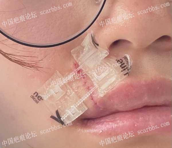 6.03嘴唇凹陷疤痕切除九院刘伟医生主刀