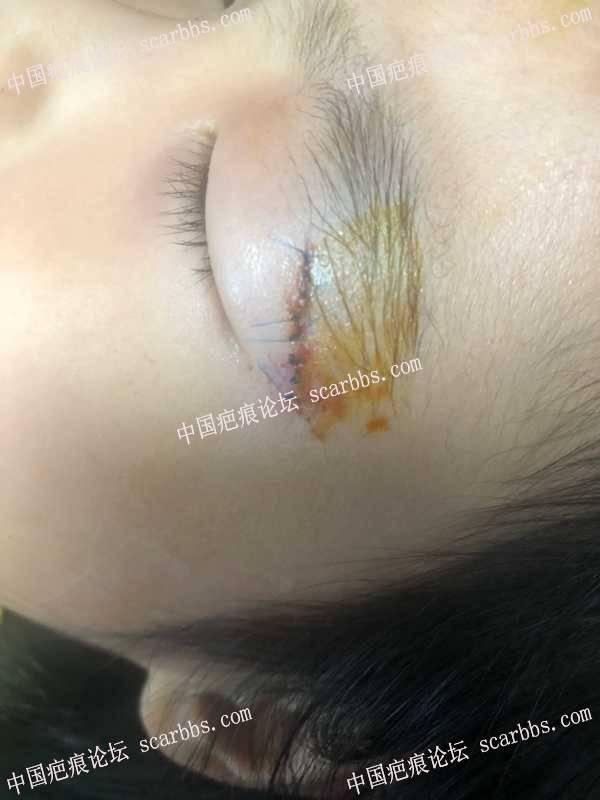 宝贝眼皮磕伤(此贴作为记录恢复过程)