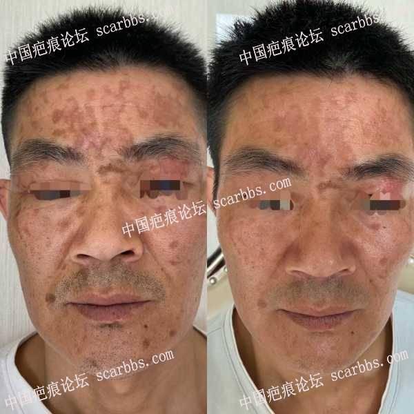 接面部烧烫伤疤痕半个月复查反馈对比照