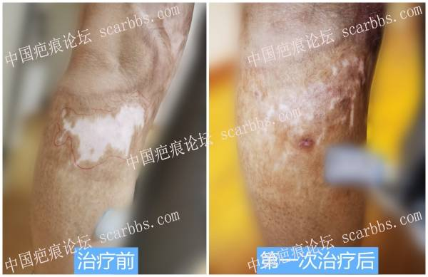 色脱疤痕一次治疗的效果