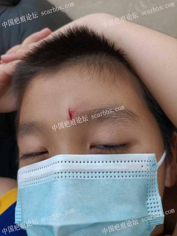 孩子玩耍受伤,要缝针吗?会留疤吗?