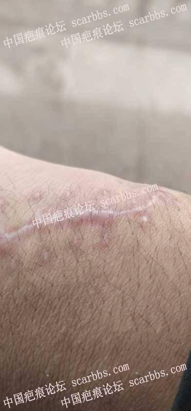 这种手术疤痕应该怎么处理?