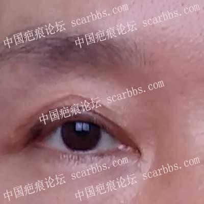 眼皮老疤痕有治吗