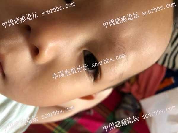 小朋友左上眼睑磕伤70天,还要继续减张吗?