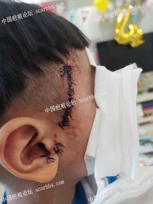 小孩头部受伤缝针45天后,护理请老师们帮看一下?