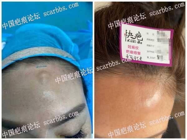 额部凸出疤痕术后45天效果 额头疤痕,凸起疤痕,疤痕术后