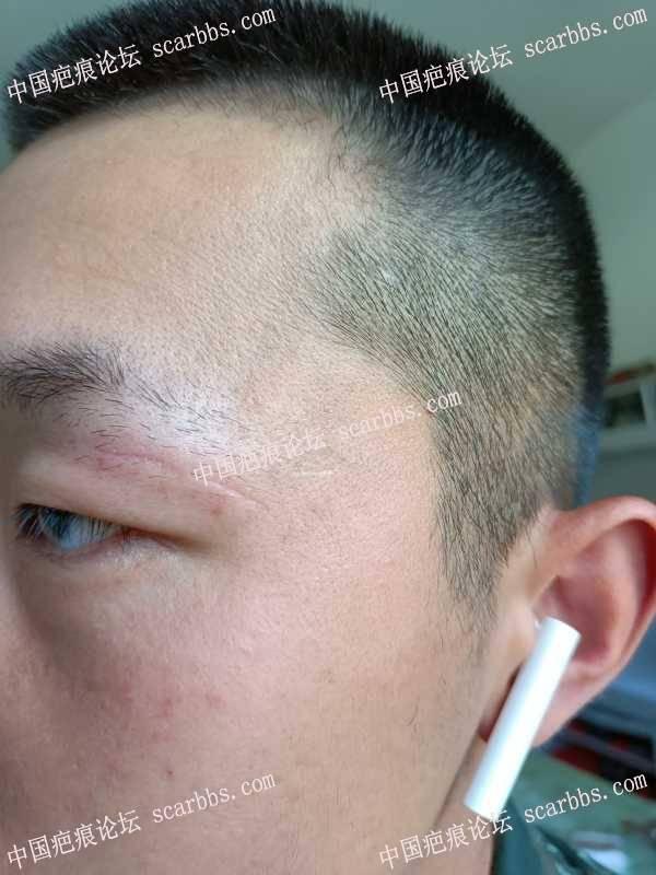 眉毛上的疤痕感觉比较明显