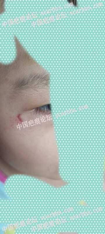 孩子哭闹疤痕充血怎么办