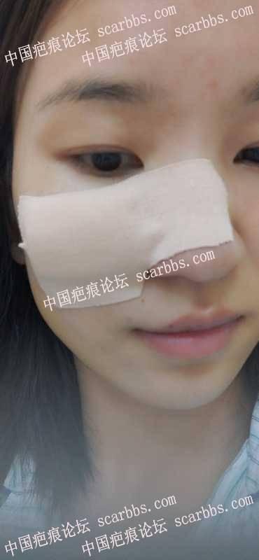 2021年6月15号杨东运教授点痣凹陷疤痕切除
