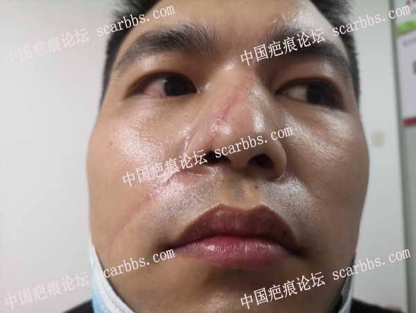 面部的这种疤痕去哪里治疗好