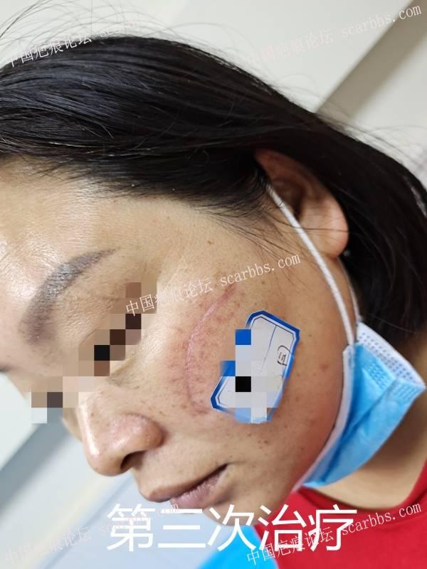 脸部手术疤痕影响生活,要赶紧祛除