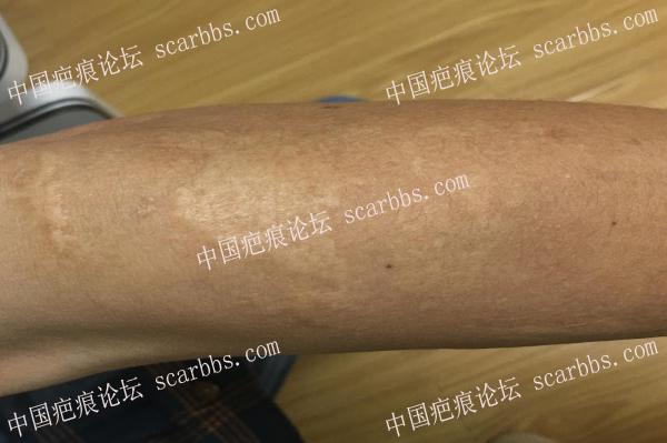 如何预防色素疤痕?教你从新伤口护理做起!