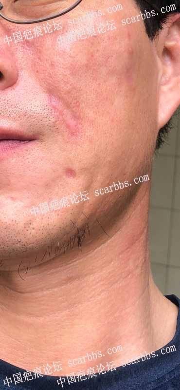 面部的烧伤疤痕怎么修复,