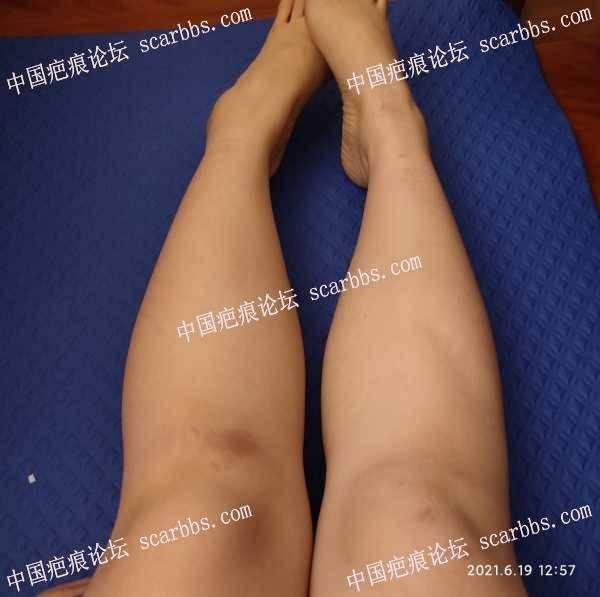 膝盖的色素沉淀怎么办?