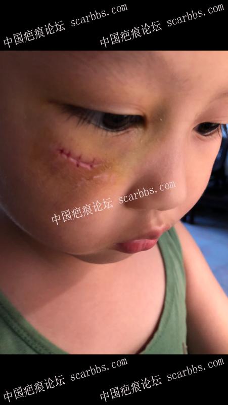 儿童脸部外伤,创面变宽怎么办?