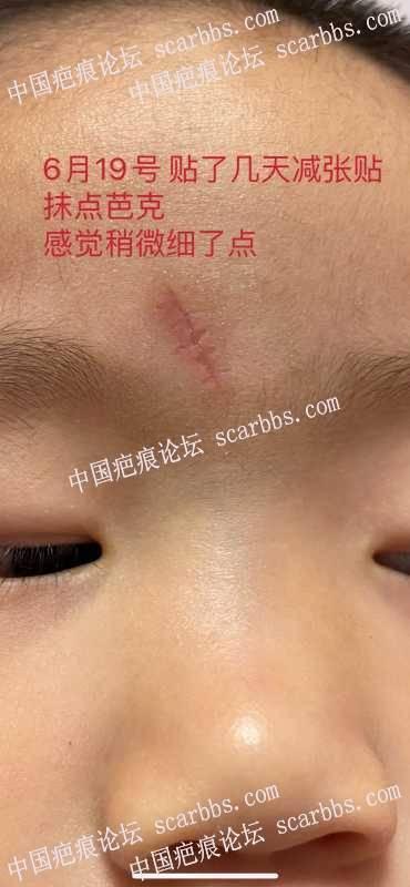 额头缝针 记录恢复过程