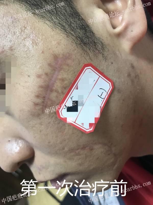 脸部凹陷、增生疤痕,离子束治疗五次治疗效果
