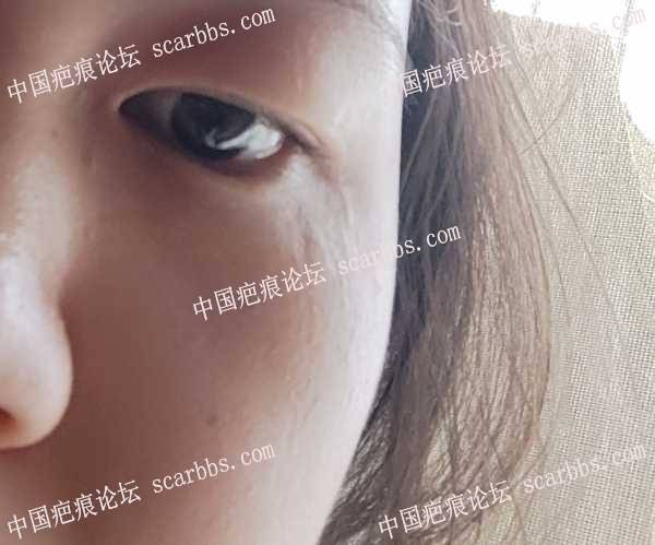 眼角凹陷疤痕可以考虑脂肪填充吗?