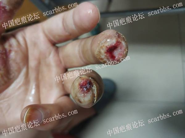 李高令2021年接治电击伤患者(潍坊高密)