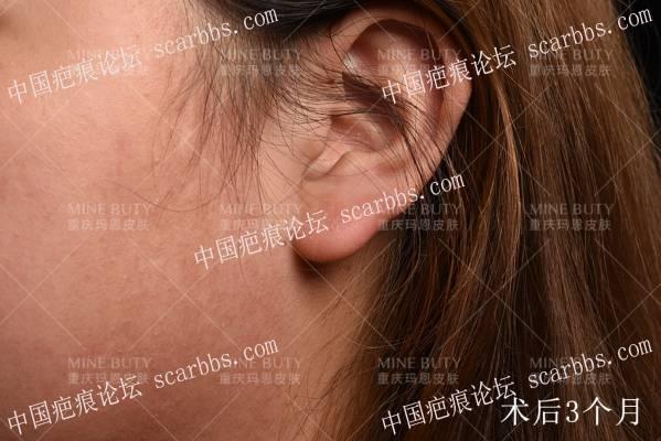 耳部疤痕疙瘩核切+浅放,完美保留耳部形态。
