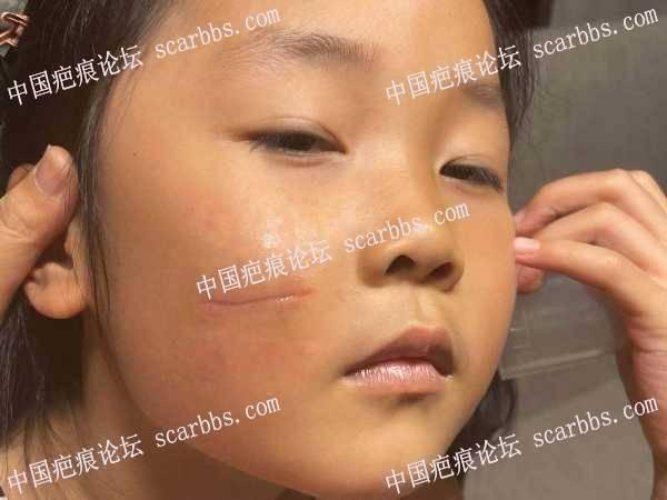 面部的凹陷疤痕,求助!