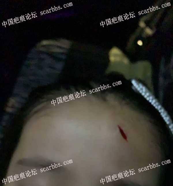 这个算凹陷伤口吗?需要用什么