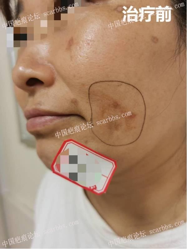凹陷色沉疤痕治疗3个月反馈