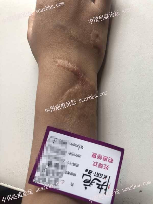 烧烫伤疤痕术前和术后5个月,持续更新中…