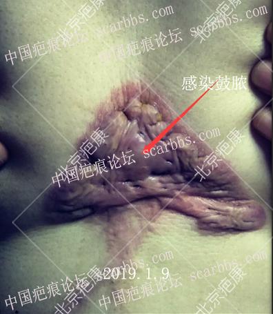 瘢痕疙瘩突然痛痒什么原因?