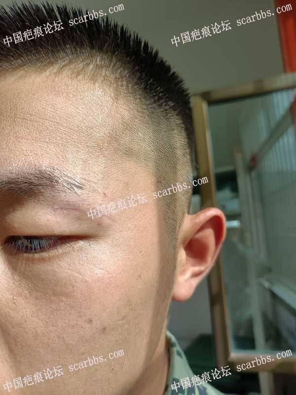 眼皮缝针拆线34天了